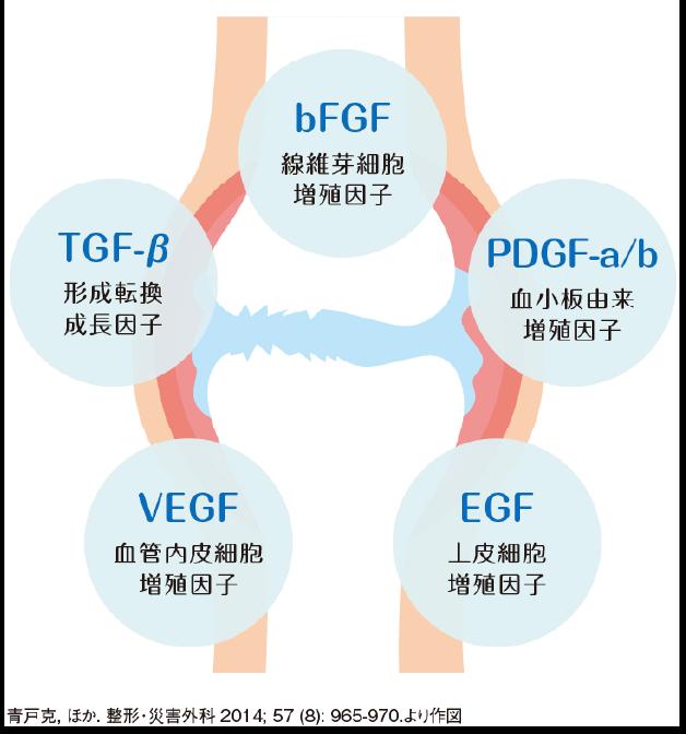 PFC-FD療法とは